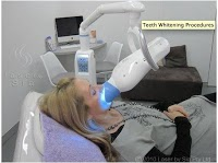 Teeth Whitening by Sia Sydney 170678 Image 0